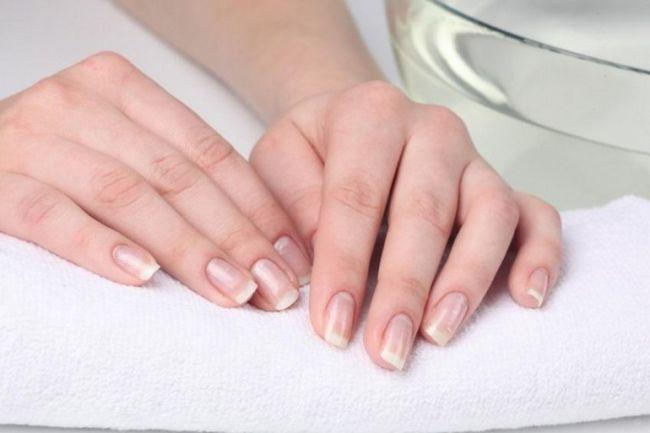 Чому з`являються білі смужки на нігтях: лікування